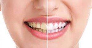 وصفة طبيعية تجعل الأسنان بيضاء كالثلج