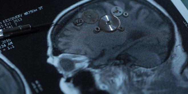 Pas tous égaux devant l'accident vasculaire cérébral !!!