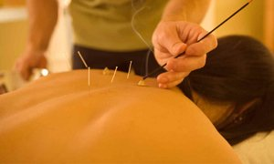 Acupuncture and Cupping in Central London
