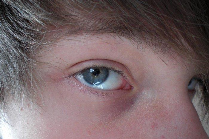 """"""" On dit que les yeux sont le reflet de l'âme """""""