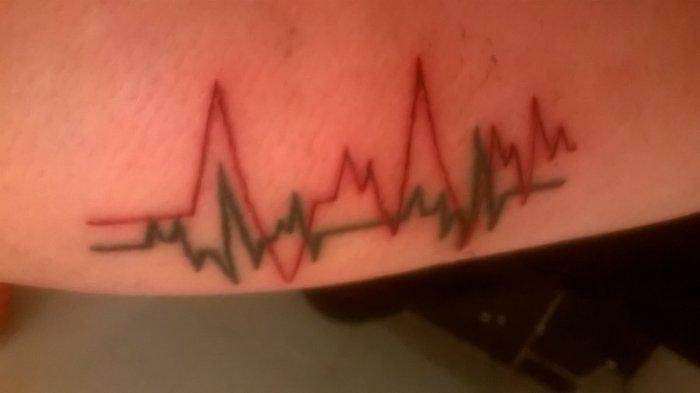 un ECG   en noir et le rouge lui est tout neuf c est des BPM  180 donc hardcore😊