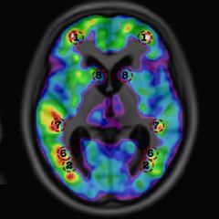 L'intelligence artificielle prédit la démence avant l'apparition des premiers symptômes