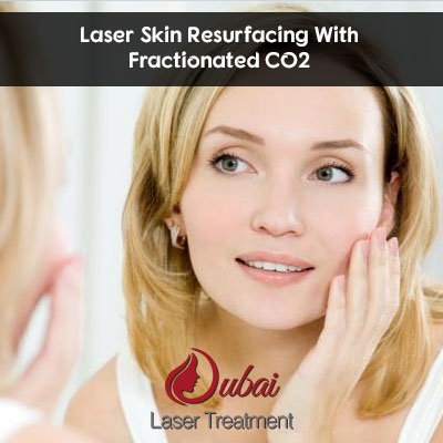 Laser Skin Resurfacing With Fractionated CO2