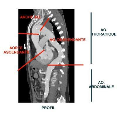 Qu'est ce que l'aorte ? - [Site internet du CHU de Toulouse]