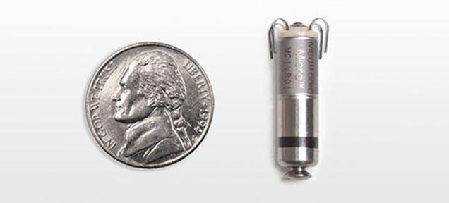 Voici le plus petit pacemaker au monde jamais implanté