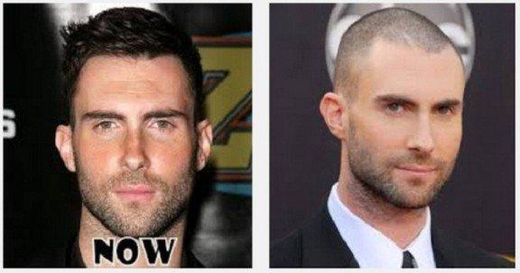 Shezays Articles Tagged Celebrity Hair Loss Shezays Blog