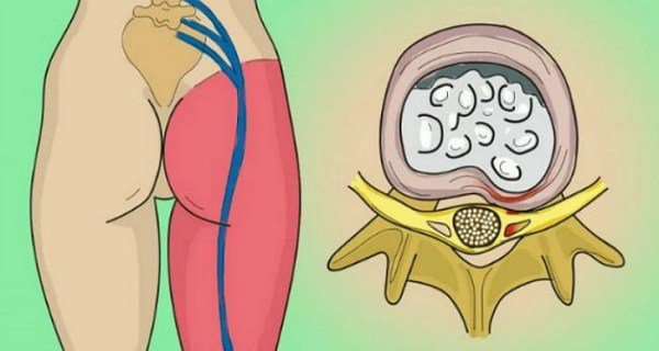 Try this Simple and Effective Method to Help Relieve Sciatic Nerve Pain - Healthy Food Society