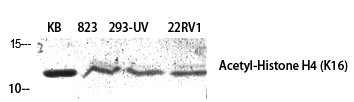 Histone H4 (Acetyl Lys16) Polyclonal Antibody - Abbkine - Antibodies, proteins, biochemicals, assay kits for life science research