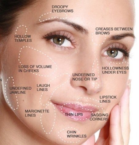 Liquid Facelift Frequently Asked Questions | Pl...