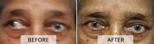 Squint Treatment in Mumbai, India - Asian Eye Institute