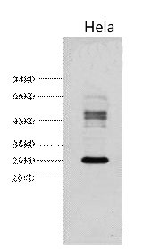 Galectin-3 Monoclonal Antibody - Abbkine - Antibodies, proteins, biochemicals, assay kits for life science research