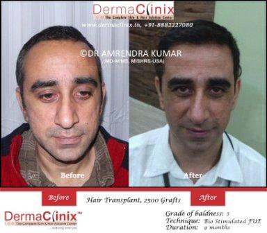 How Reliable Can be Hair Transplantation For You | Articles @ PR3