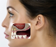 Dental Surgeries in Thailand at Frugal Expenses