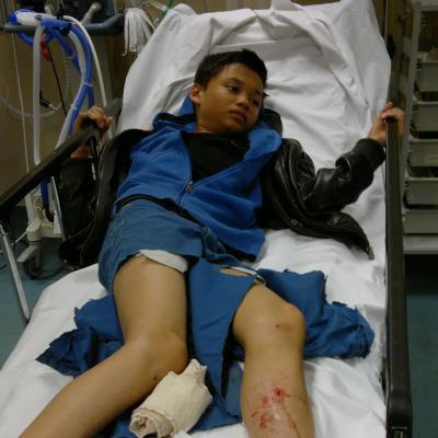 Martelange: un bus du TEC écrase la jambe de Jérémy (12 ans)