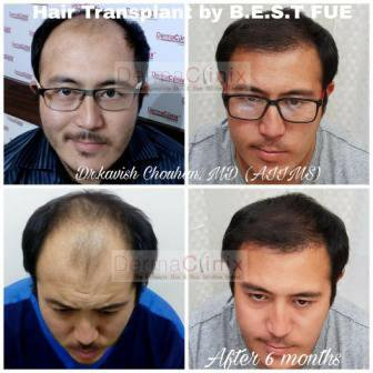 Best Hair Transplant Center In Delhi | Articles@PR5