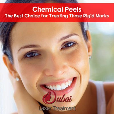 Chemical Peels- The Best Choice for Treating Those Rigid Marks