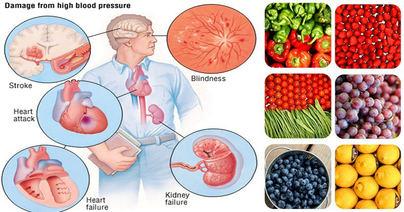 11 Ways to Lower Your Blood Pressure Naturally Without Using Medication - Healthy Food Society