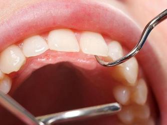 Essentials of Dental Treatment in Bangkok