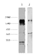 HER2 Monoclonal Antibody - Abbkine - Antibodies, proteins, biochemicals, assay kits for life science research