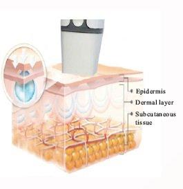 BIO Fractional RF Thermage Muti Polar RF Radio Frequency Facial Skin Rejuvenation Skin Care Machine