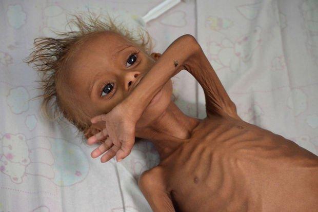 20 millions de personnes pourraient mourir de faim d'ici 6 mois