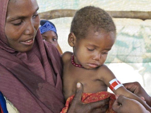 MSF renforce ses interventions pour lutter contre la malnutrition dans les pays de la Corne de l'Afrique. | Médecins Sans Frontières