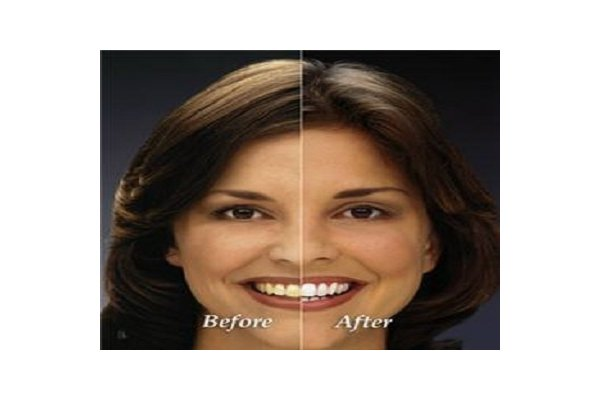 Dental Implants Turlock CA - www.varanismile.com