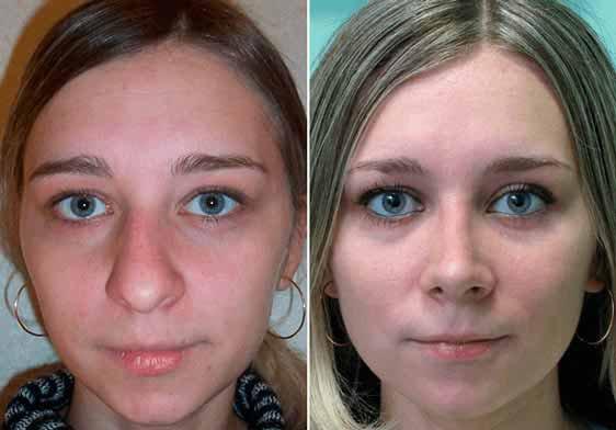 Промяната на формата на носа в домашни условия Е ВЪЗМОЖНА - beautylifestile