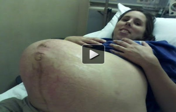 [Shocking video]Incredible ! Discover What this women are in her belly !!