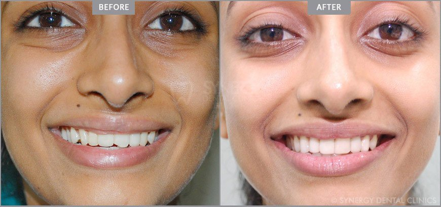 Get Smile Make Over in Mumbai at Affordable Cost