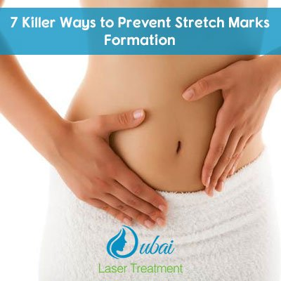 Stretch Marks Removal Treatment in Abu Dhabi
