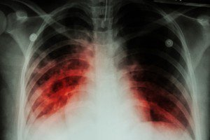 Active tuberculosis case at University of Alabama prompts mass diagnosis