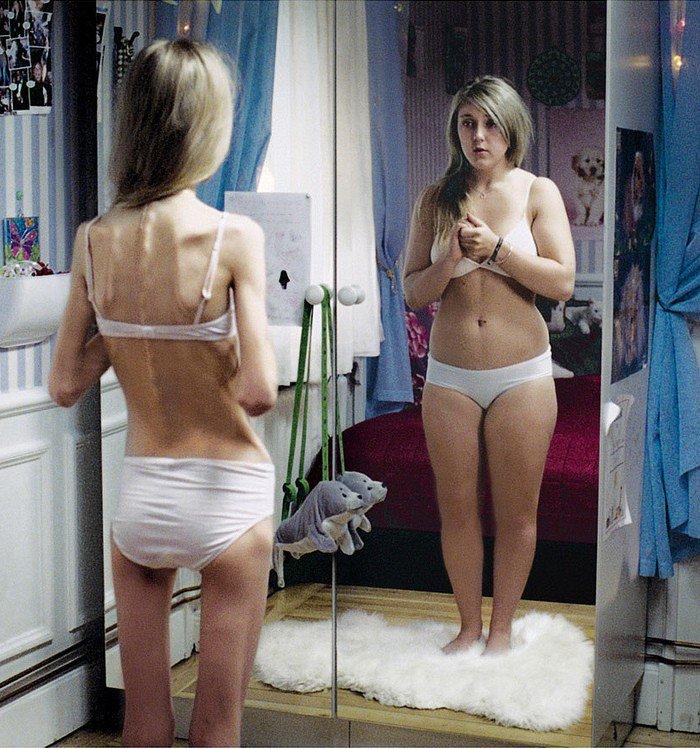 Sortir de l'enfer de l'anorexie, c'est possible !