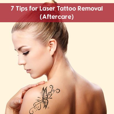 7 Tips for Laser Tattoo Removal (Aftercare)