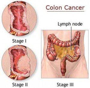 anzeichen darmkrebs erkennen
