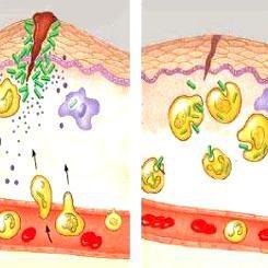 Diabète, grands brûlés…: un traitement cellulaire d'immunothérapie pour accélérer la guérison des plaies
