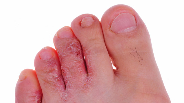 Skin Fungal Infection: Causes, Symptoms and Treatments ~ Health