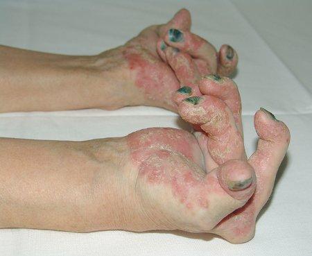 Bệnh vẩy nến. Loại bỏ căn bệnh chết người gây ra do suy yếu hệ tự miễn dịch này như thế nào? Phỏng vấn chuyên gia da liễu hàng đầu Việt Nam!