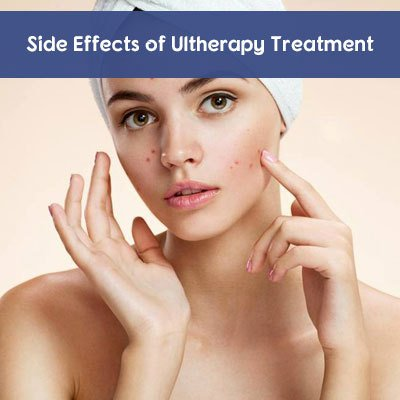Side Effects of Ultherapy Treatment