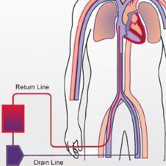 Le Samu pratique la circulation extracorporelle sur les lieux des arrêts cardiaques à Lyon (après Paris)