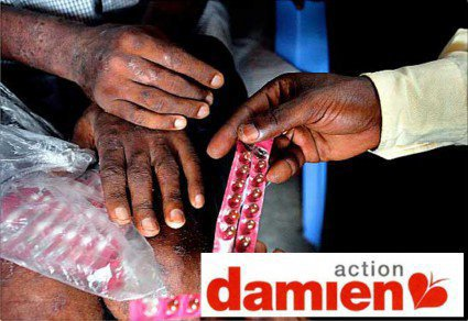 Blog de fondation-Damien-iles-de