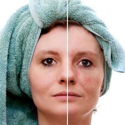 Skin Rejuvenation Dubai
