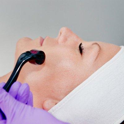 Collagen Induction Therapy in Dubai, Abu Dhabi & Sharjah