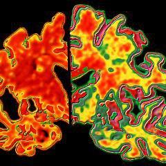 Pfizer abandonne la recherche de médicament contre l'Alzheimer et le Parkinson