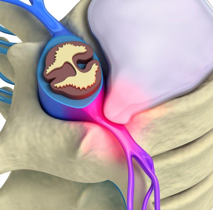 Canal Cervical Etroit (Myélopathie Cervicale) - Institut Parisien du Dos, Chirurgie colonne vertebrale Paris