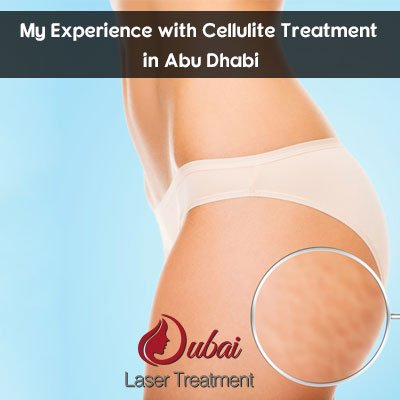 My Experience with Cellulite Treatment in Abu Dhabi