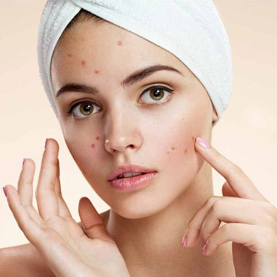 How To Get Rid of Large Pores and Acne scars