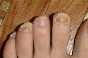 วิธีที่ฉันใช้กำจัดเชื้อราที่เท้า หายขาดใน 9 วัน ด้วยวิธีง่าย ๆ แต่เห็น?...