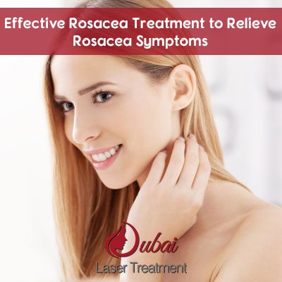 Effective Rosacea Treatment to Relieve Rosacea Symptoms