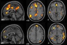 Le cerveau aux commandes de notre santé...